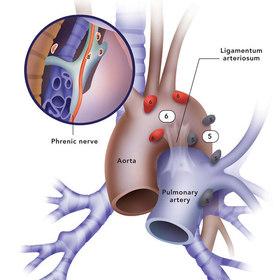 medische illustratie